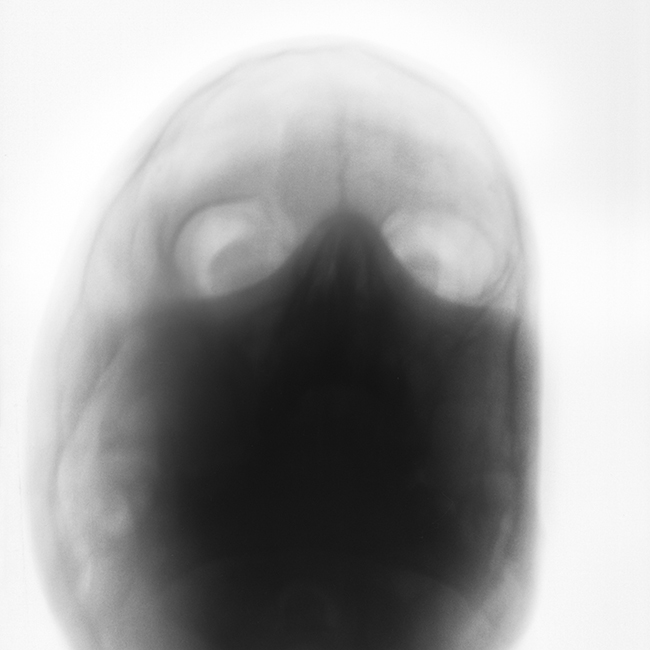 12 novembre 1982 -   E' una fotografia di rivelazione quella che mi ha donato, attraverso vecchie radiografie, gli sguardi dei ricoverati di un manicomio.